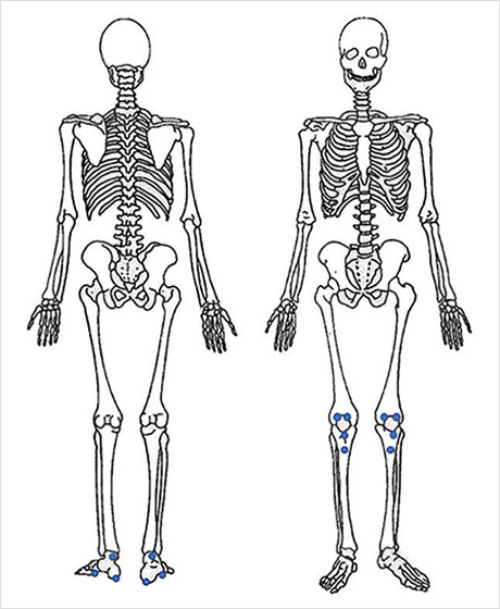 Entheseal exam: Blue dots indicate areas of active enthesitis