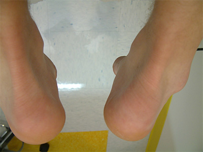 Swelling over Achilles insertion bilaterally