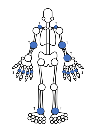Joint exam: Areas shaded in blue in the homunculus had signs of active arthritis